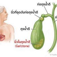 นิ่วในถุงน้ำดี ป้องกันได้ ด้วยอาหารเสริมสุขภาพ กิฟฟารีน