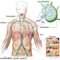 มะเร็ง ต่อมน้ำเหลือง แนะนำอาหารเสริมสุขภาพ กิฟฟารีน