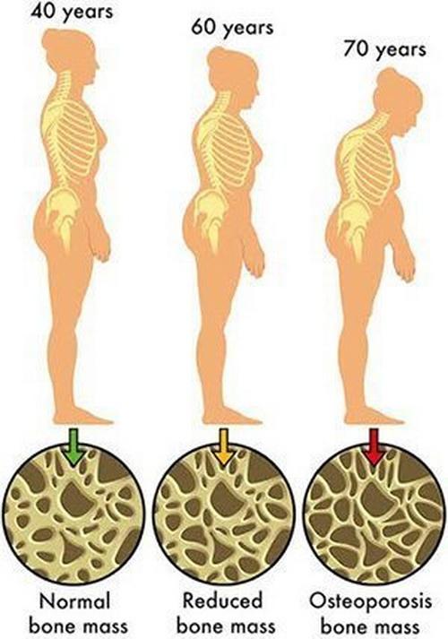โรคกระดูกพรุน ,Osteoporosis,โรคกระดูกบาง ,Osteopenia